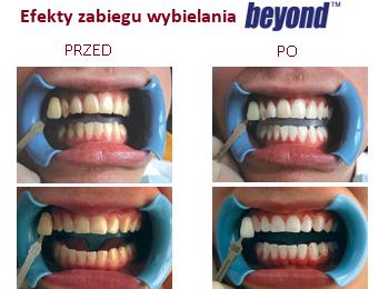 wybielanie zębów beyond opinie